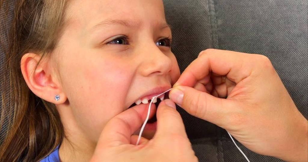 Как вырвать молочный зуб у ребенка в домашних условиях