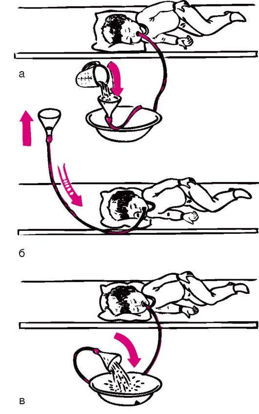 Алгоритм, техника промывания желудка маленькому ребенку. — медицина. сестринское дело.