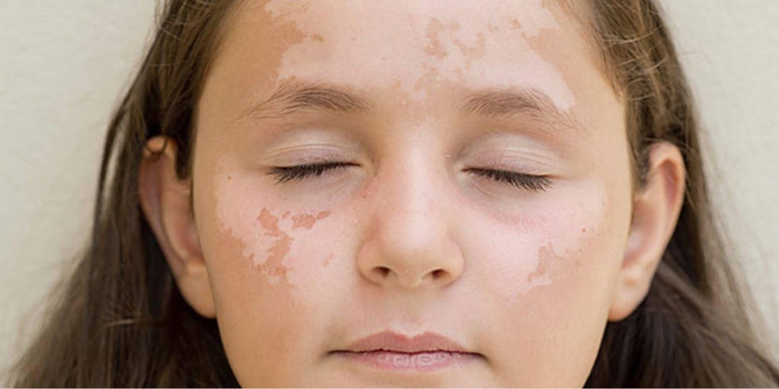 Шершавые пятна на теле у ребенка: фото и описание