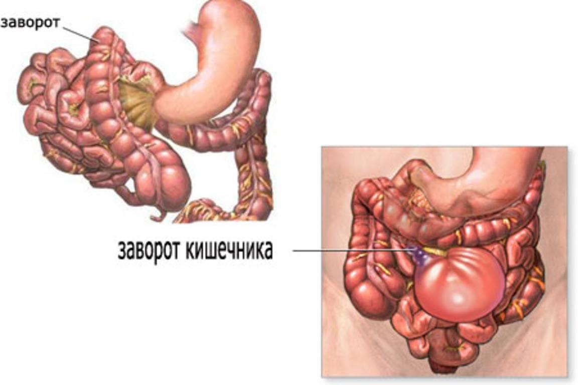 Симптомы и методы лечения кишечной непроходимости у детей