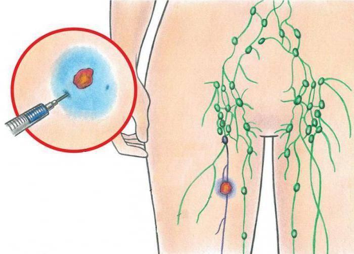 Почему воспалились и болят лимфоузлы в паху у ребенка