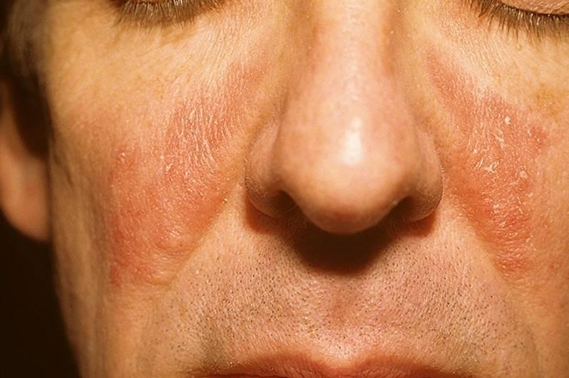 Грибковые заболевания кожи у детей