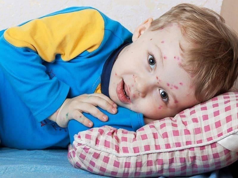 Корь симптомы и лечение профилактика фото у детей и взрослых