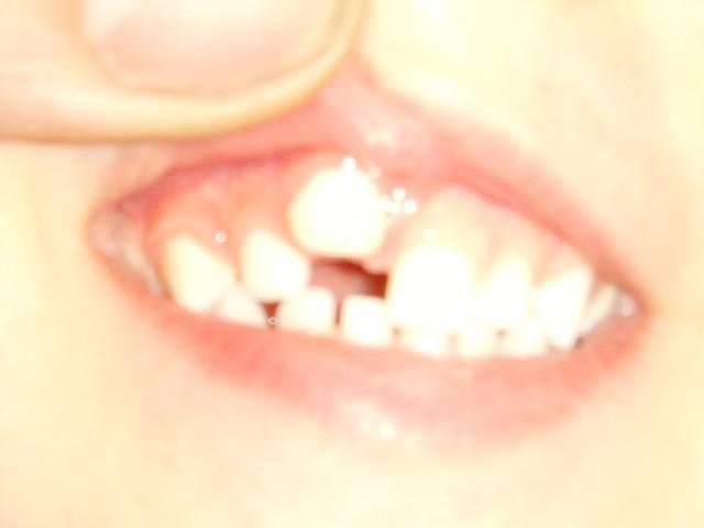 Криво режутся зубки: фото, причины, как исправить? - vzubkah.com
