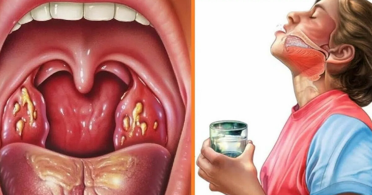 Фолликулярная ангина: лечение, симптомы, фото, антибиотики