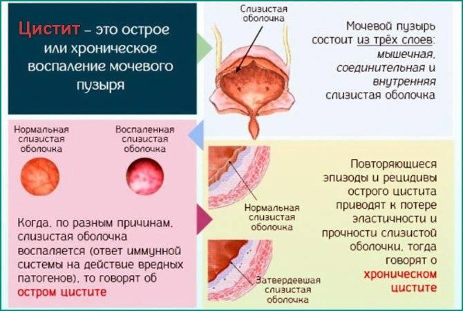 Цистит у девочки 9 лет симптомы и лечение - лечение