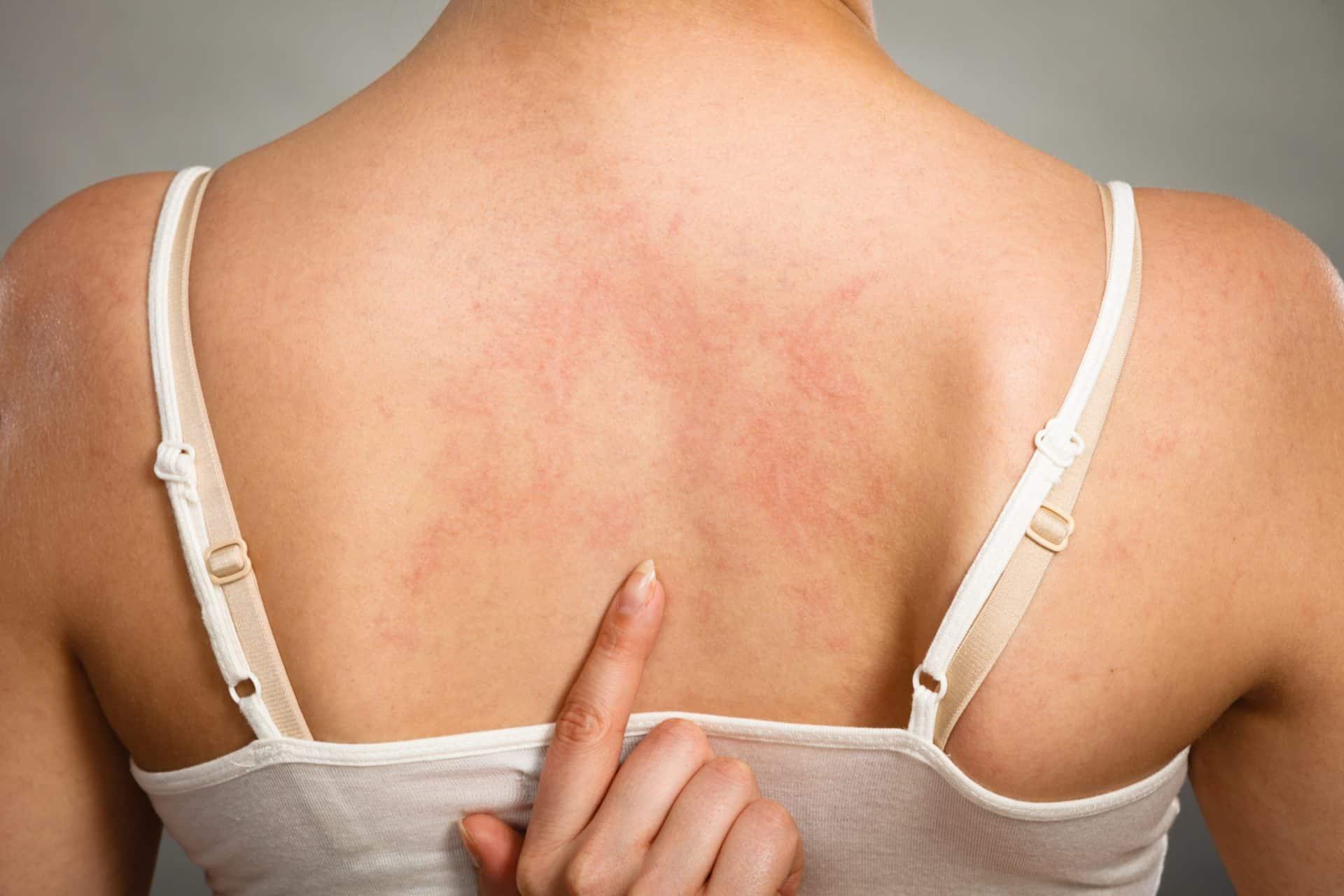 Аллергия на коже: 85 фото как выглядит аллергия и обзор основных ее проявлений