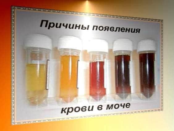 Сгустки крови в моче у мужчин: что это означает
