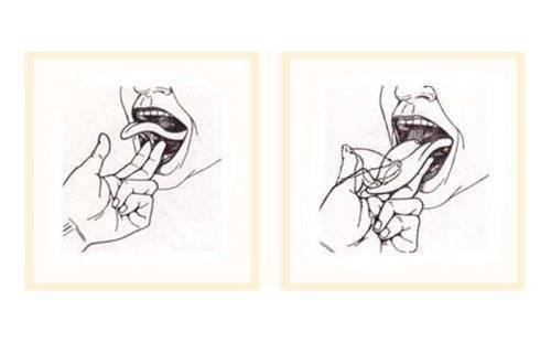 Короткая уздечка языка у ребенка, новорожденного. как определить, признаки, в каком возрасте подрезать