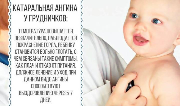 Ангина у грудничка: причины, симптомы и лечение заболевания