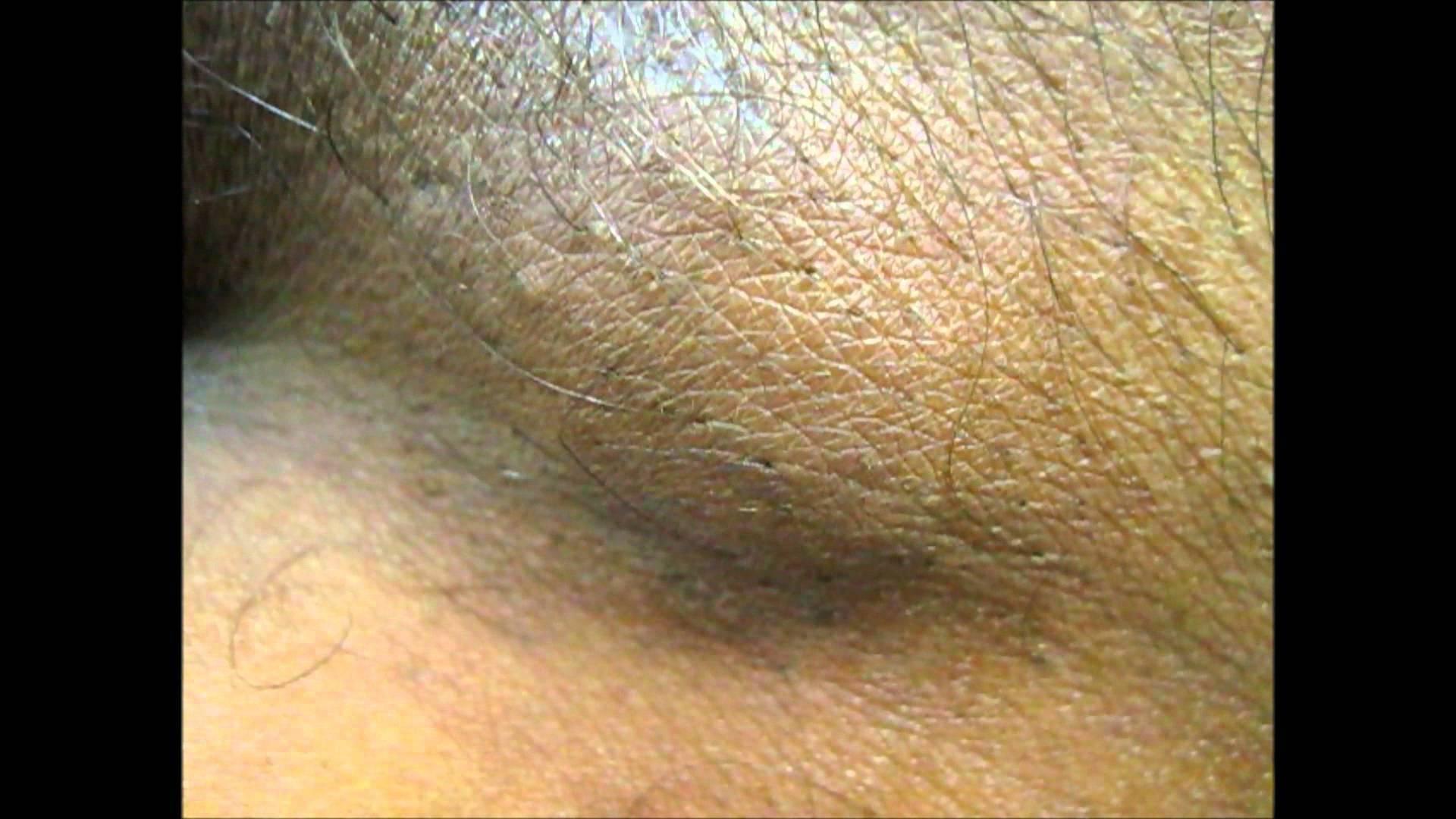 Воспалился лимфоузел в паху у ребенка: причины, лечение