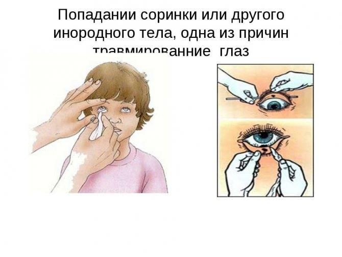 Попал песок в глаза ребенку: что делать, как и чем промыть глазки, оказание первой помощи и советы врачей