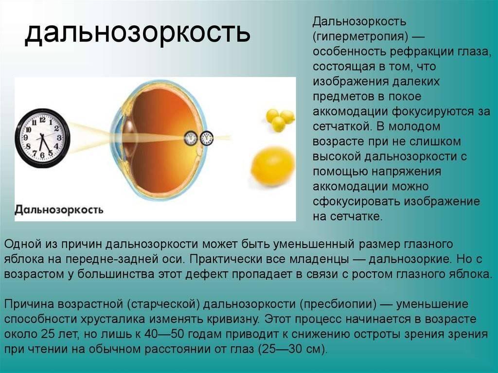Дальнозоркость у детей (гиперметропия): лечение в 1, 2, 3, 4, 5, 6, 7 и 8 лет, можно ли вылечить врожденную дальнозоркость глаз у детей до года