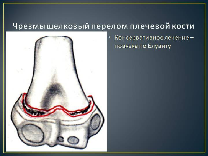 Закрытый перелом чрезмыщелковый плечевой кости