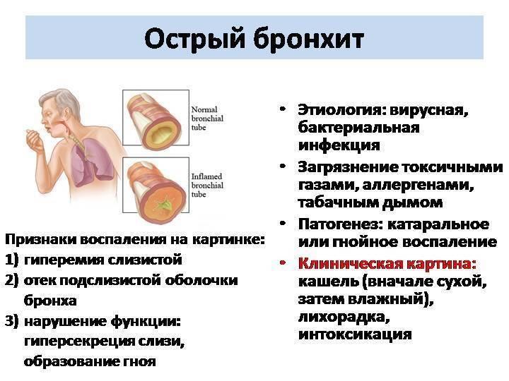 Обструктивный бронхит у детей - симптомы и лечение