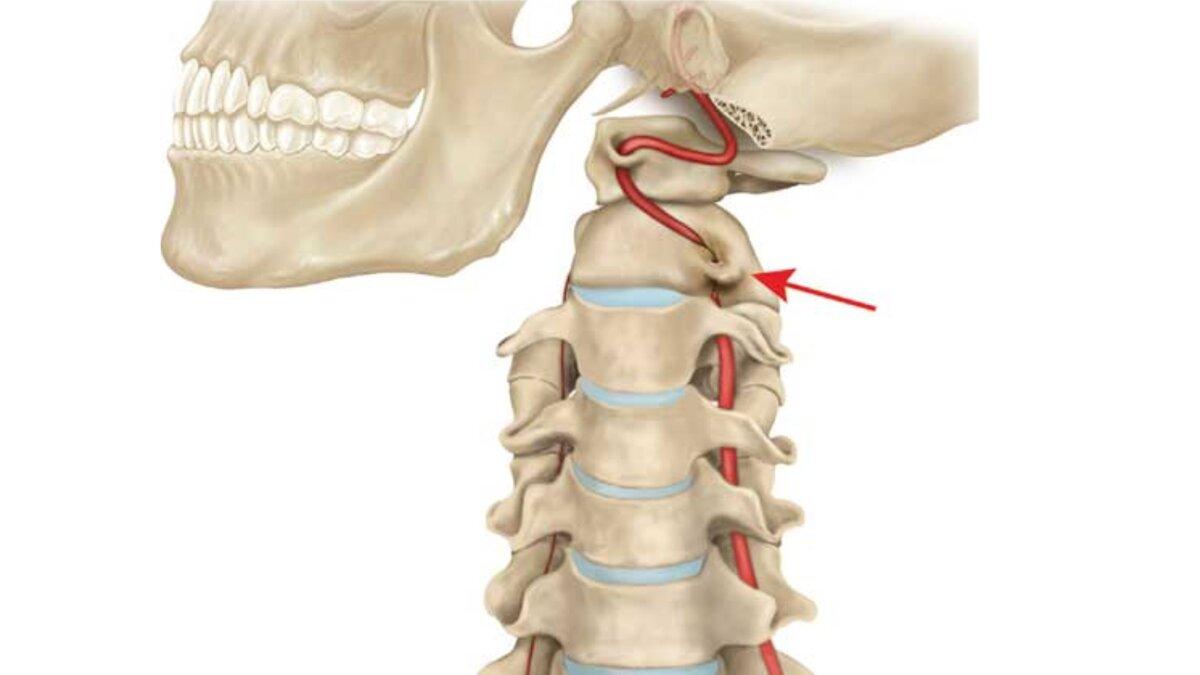 Нестабильность шейного отдела позвоночника: проявление и лечение