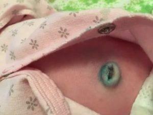 Кровит пупок у новорожденного с прищепкой или после ее отпадения