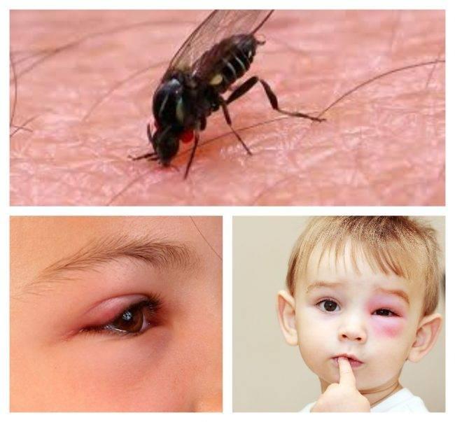 После укуса комара у ребенка опух глаз, что делать - вся медицина