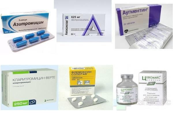 Антибиотики при бронхите у взрослых: названия лучших таблеток