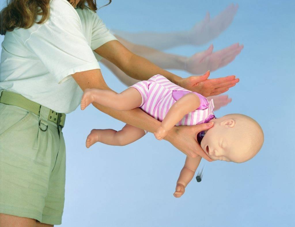 Что делать если ребенок подавился и задыхается