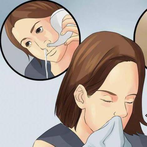 Кашель при аденоидах у детей лечение - о простуде