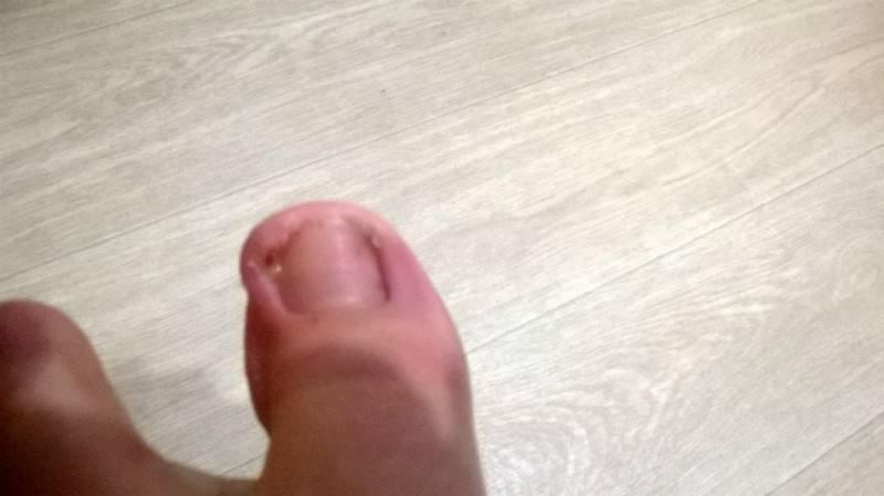Нарывает палец на руке возле ногтя: что делать, лечение в домашних условиях