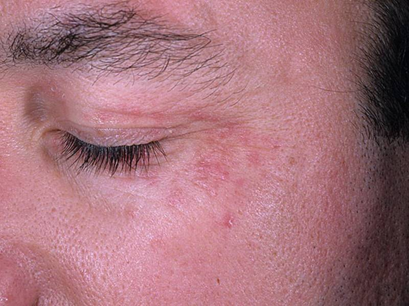 Микоз кожи: фото, лечение, препараты недорогие и эффективные