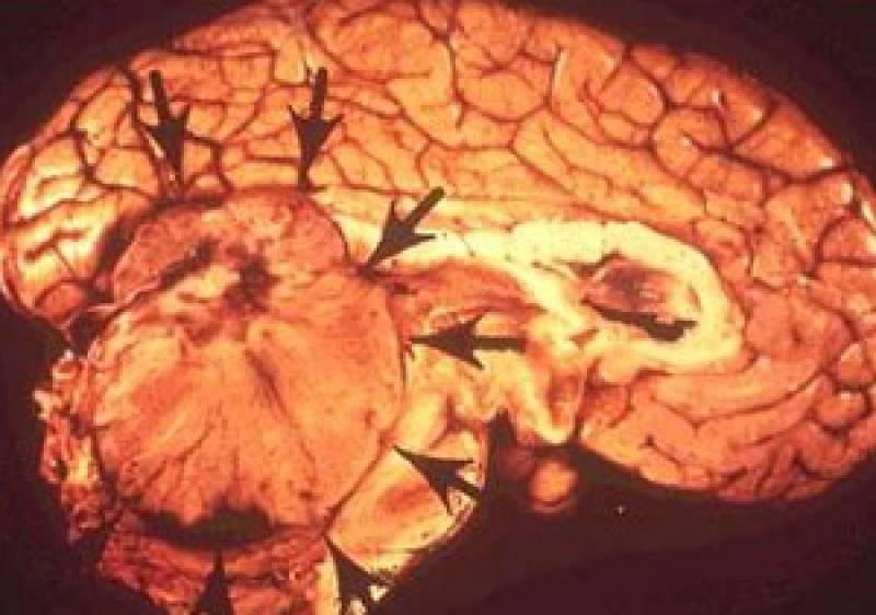 Опухоль головного мозга у детей: симптомы и лечение