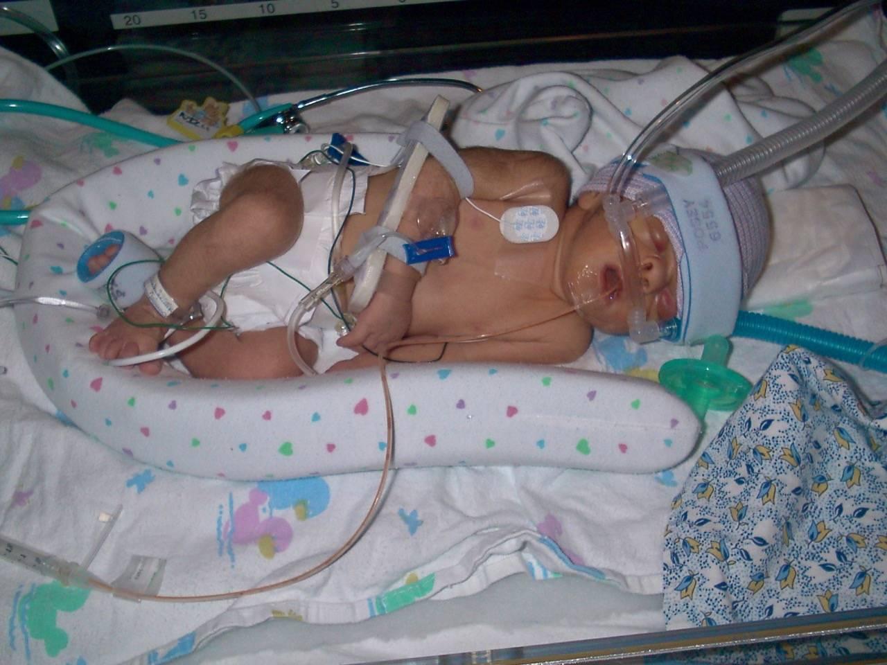 Тяжелая асфиксия новорожденных при родах: реанимация, лечение и последствия
