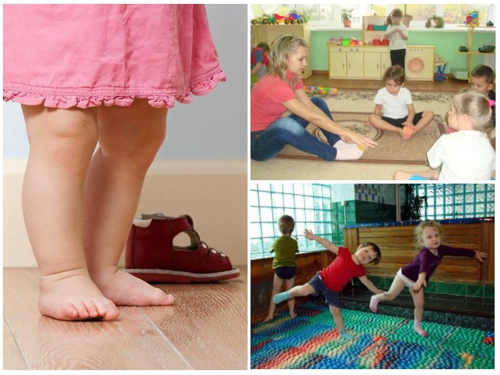 Упражнения при плоскостопии у взрослых и  детей,лечение, причины, последствия