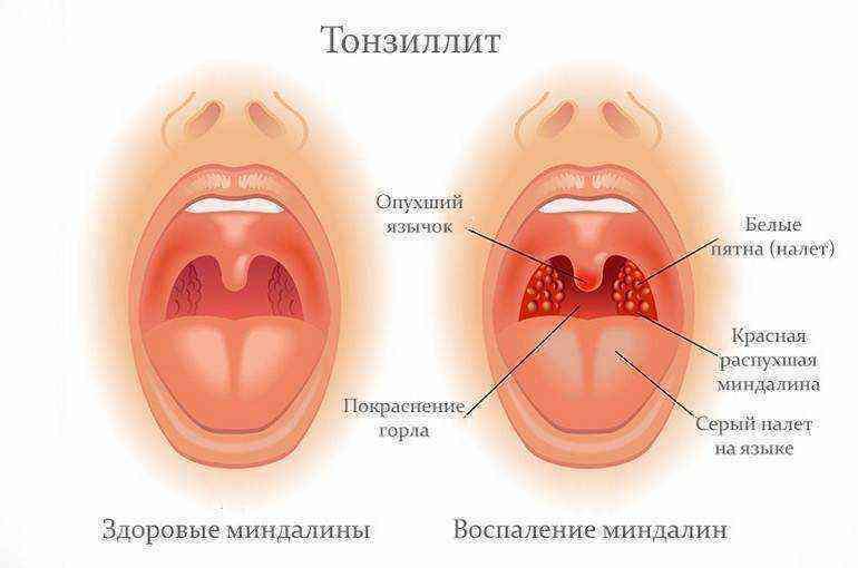 Красное и рыхлое горло у ребенка чем лечить