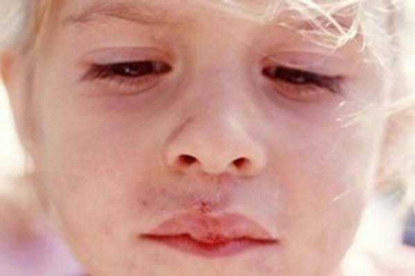 Опасен ли острый герпетический стоматит у детей и чем его лечить?