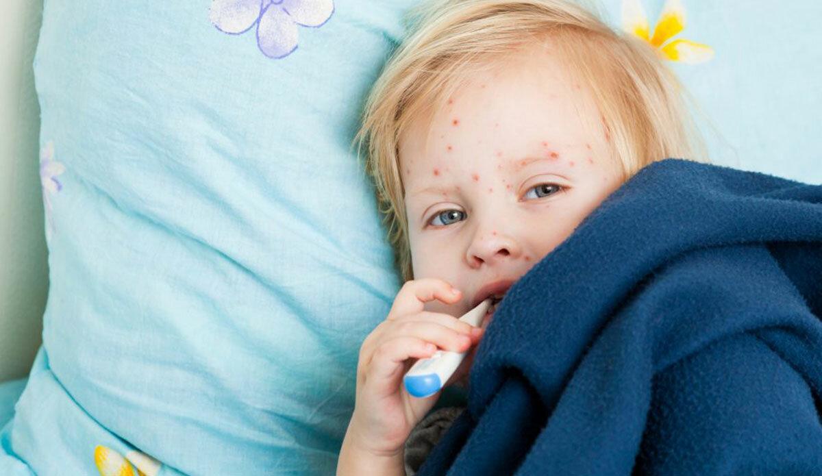 Ветрянка сыпь во рту у ребенка