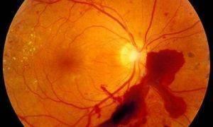 Ретинопатия недоношенных | компетентно о здоровье на ilive