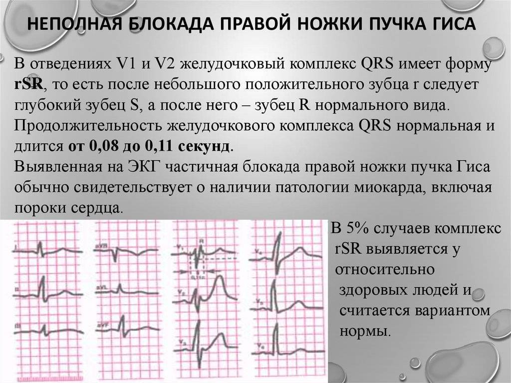 Нарушение внутрижелудочковой проводимости сердца на экг