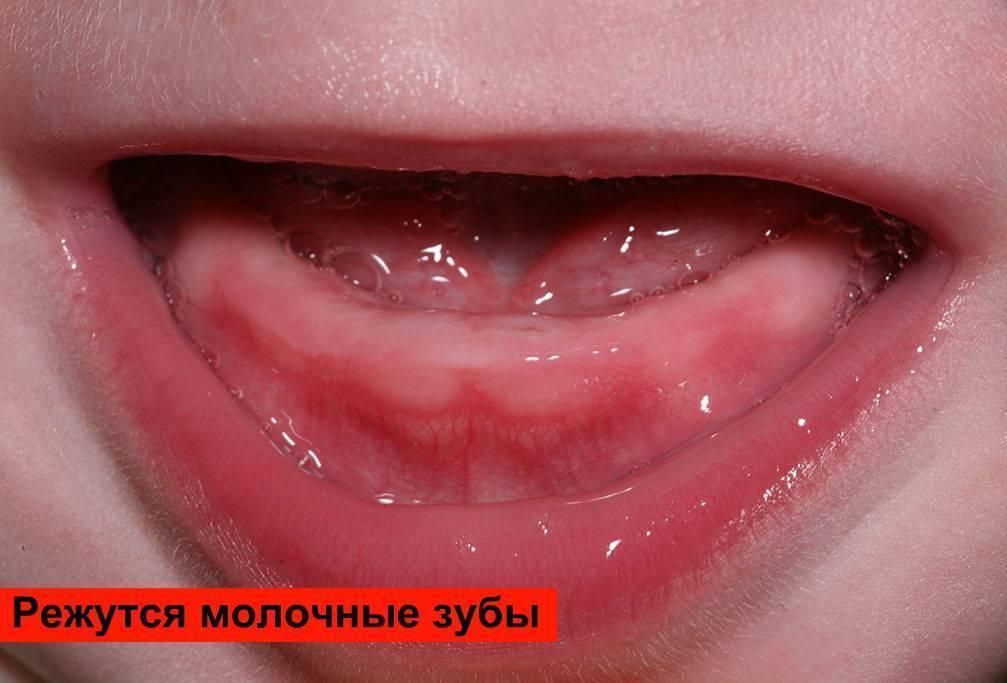 Гематома при прорезывании зубов — болезни полости рта