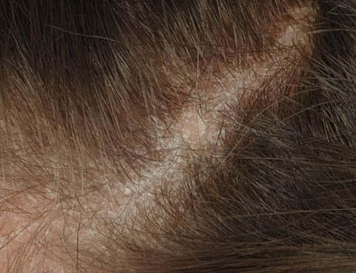 Себорейный дерматит: симптомы себореи и их фото, методы лечения дерматита на коже головы у ребёнка