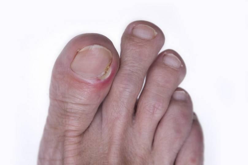 Нарыв на пальце у ребенка возле ногтя: как лечить и что делать, если ранка гноится? - докторская тайна