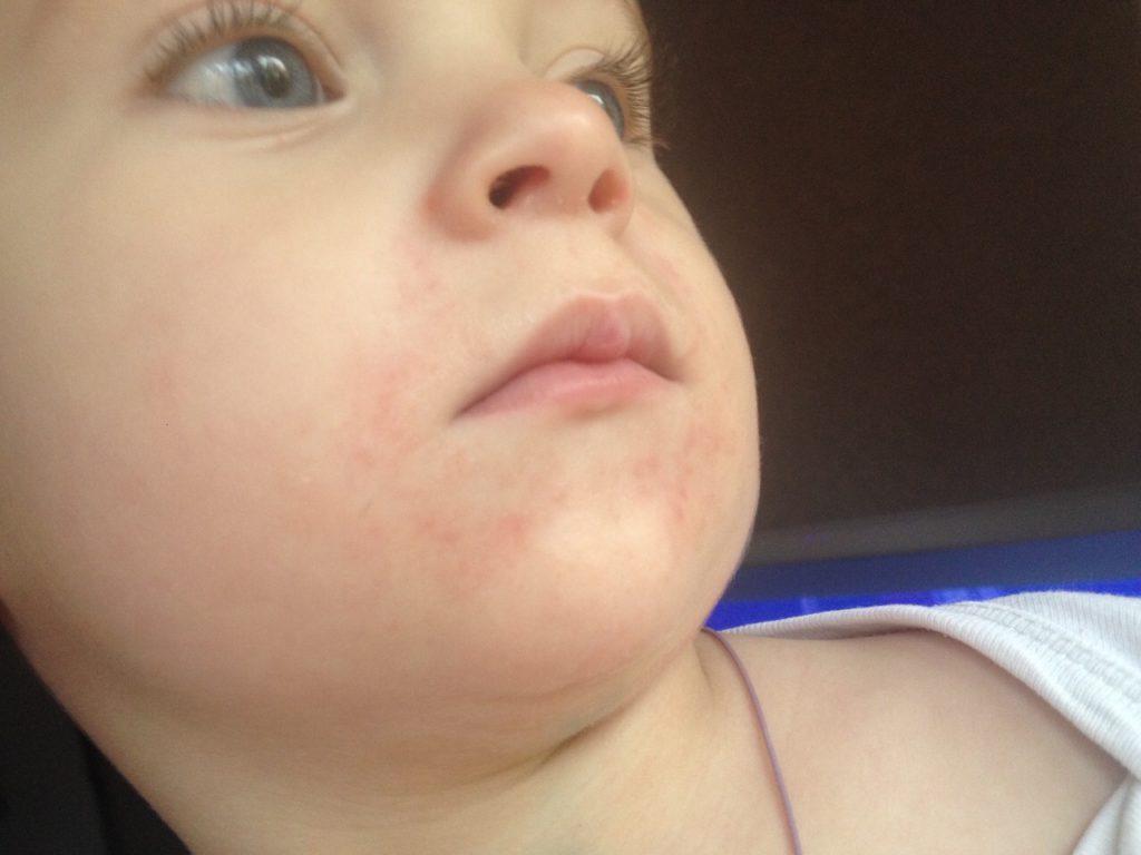 Сыпь на подбородке у ребенка: раздражение от слюней, аллергия и другие причины (фото с пояснениями) | симптомы | vpolozhenii.com