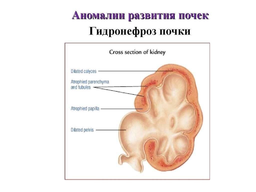Пороки и аномалии почки на узи: какие бывают и как диагностируются