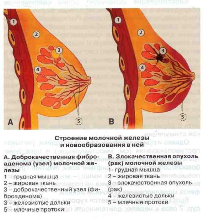 Когда начинает набухать грудь при беременности: сроки по неделям