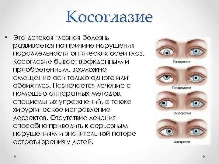 Основные способы лечения и причины нарушения зрения у детей