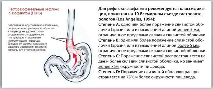 Рефлюкс эзофагит: симптомы и лечение у детей и ребенка
