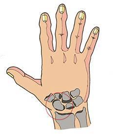Перелом руки у ребенка со смещением и без: симптомы, лечение