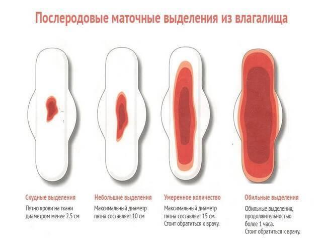 Сгустки крови в матке после родов остались и не выходят: что делать, причины