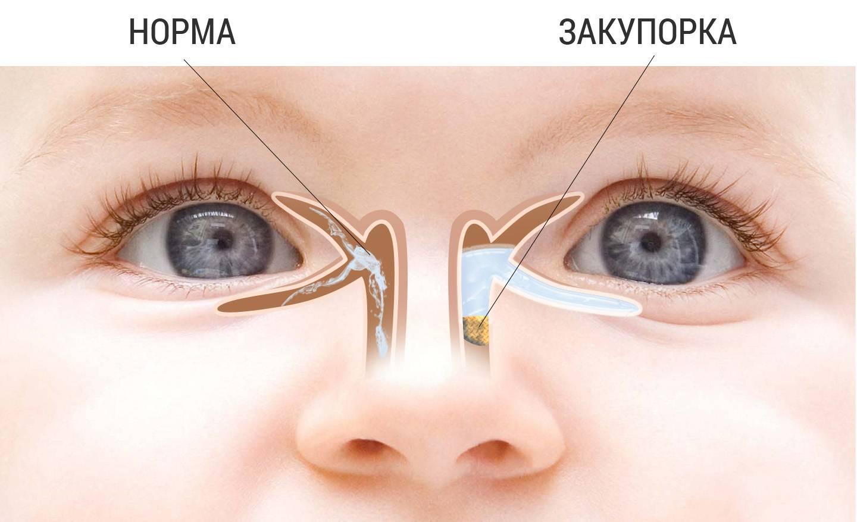 Дакриоцистит (закупорка слезного канала) у новорожденных: лечение