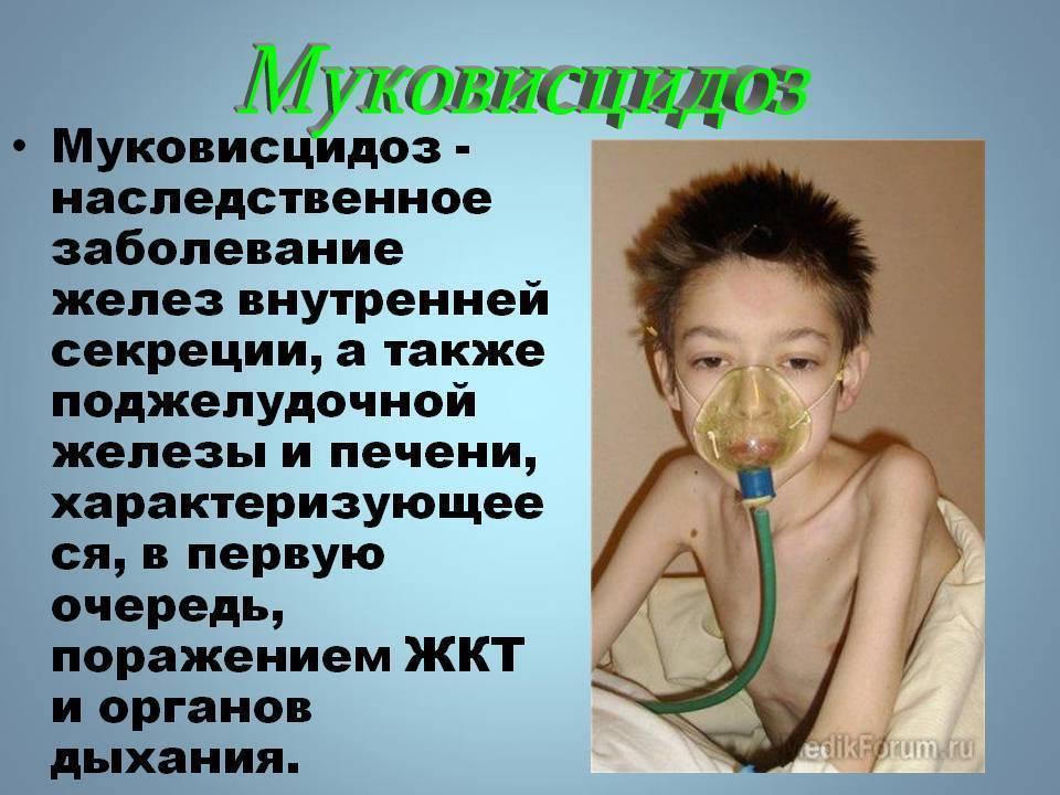 Муковисцидоз. муковисцидоз у новорожденных симптомы