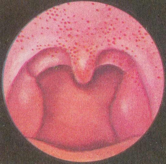 Сыпь на слизистой рта у ребенка фото с пояснениями
