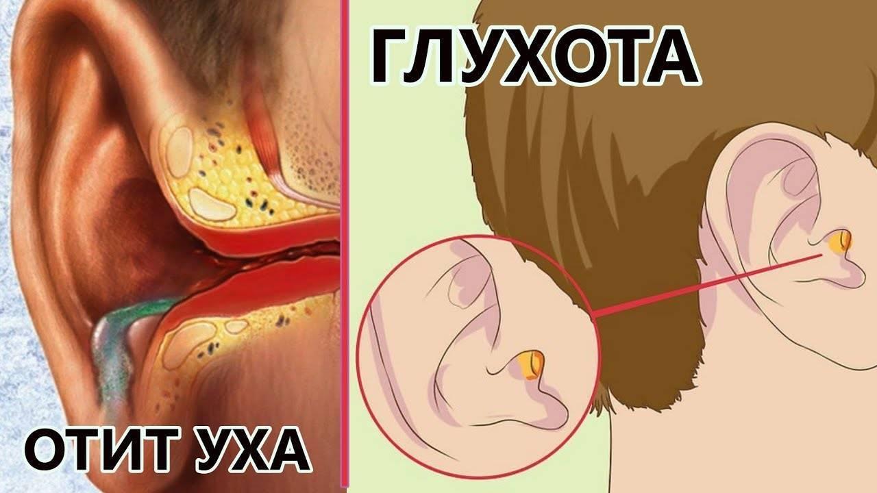 Засохшая кровь в ухе у ребенка. причины кровотечения из уха у ребёнка