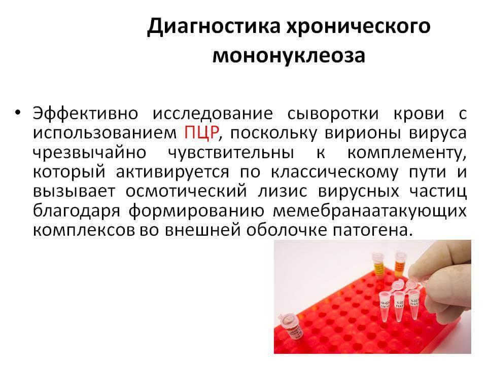 Мононуклеоз у детей – симптомы и лечение, что это за болезнь и бывает ли она у взрослых